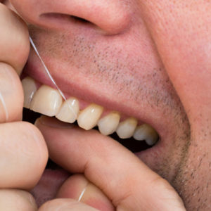 is flossing important